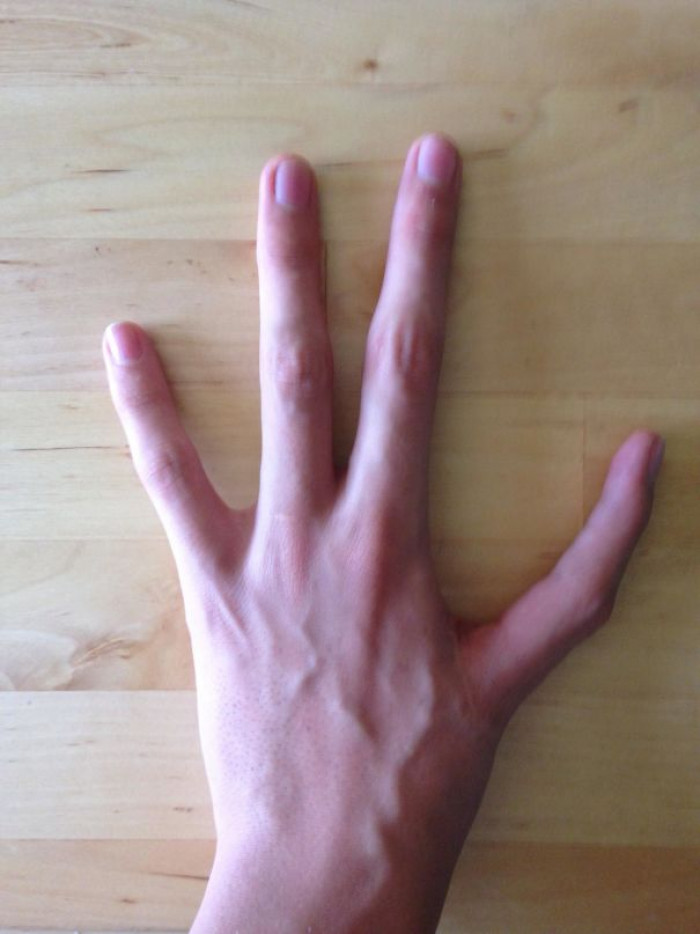 """I Have Only Four Fingers On My Left Hand, And Have And Index Finger Instead Of My Thumb"""