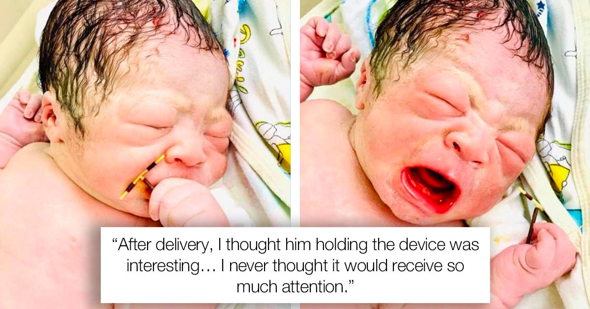 Newborn Came Out Clutching His Mom's Failed Contraceptive Coil In His Fist