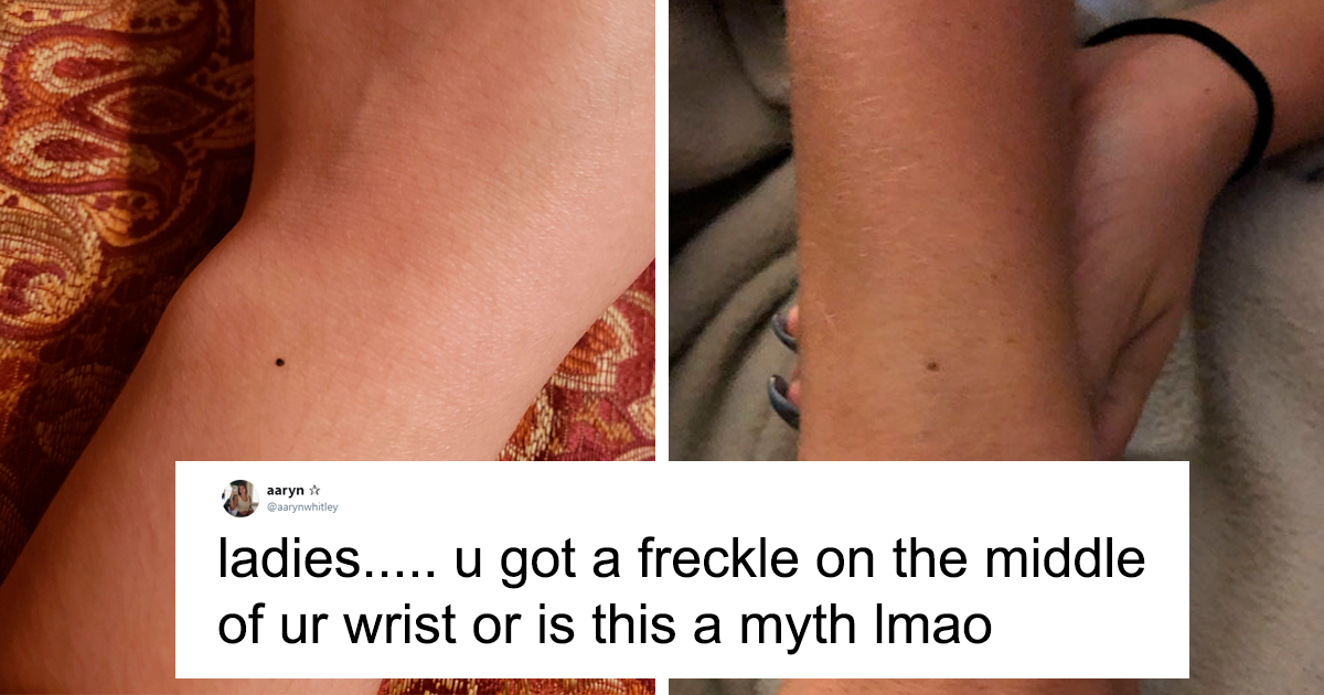 People Are Freaking Out Over This Claim That All Women Have A Freckle On Their Wrist