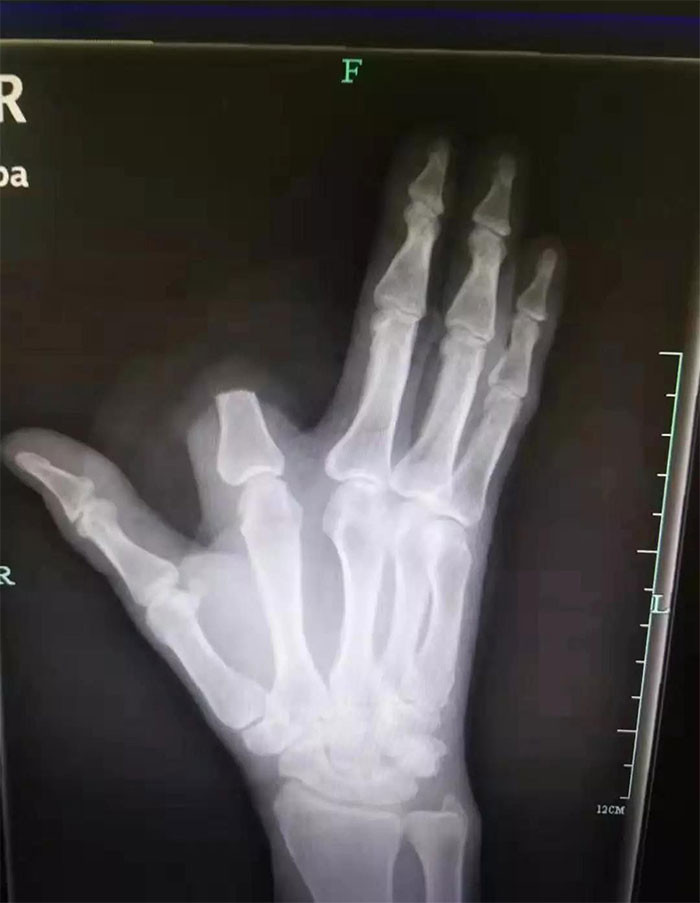 #37 Chinese Man Chops Off His Own Finger After A Snake Bite 'To Save My Own Life', But Doctors Say It Was Totally Unnecessary
