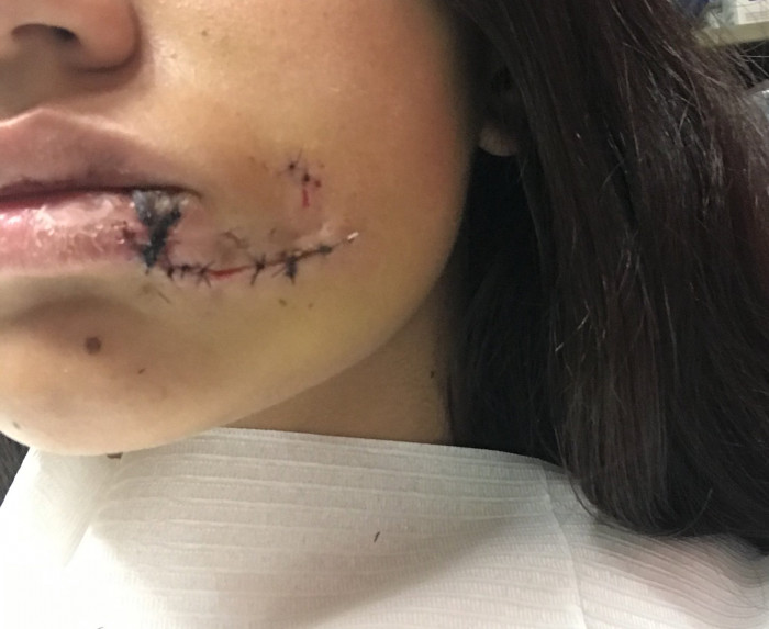 Lara also posted a shot of the other side of her face, showing the damage done by Kenai's lower jaw.