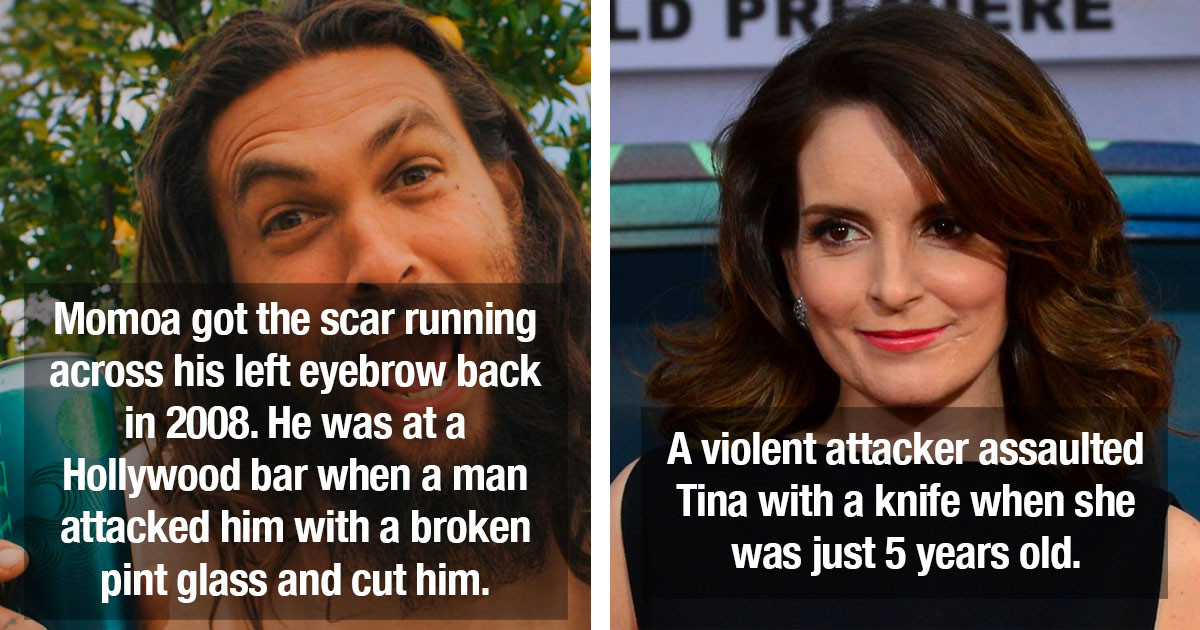 Celebrities With Very Visible Scars Explain The Reason Why They Have Them