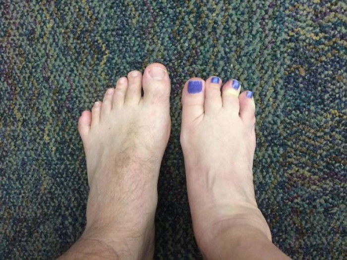 """I Was Born With 6 Toes On My Left Foot And My Co-Worker Was Born With 4 Toes On Her Right Foot"""