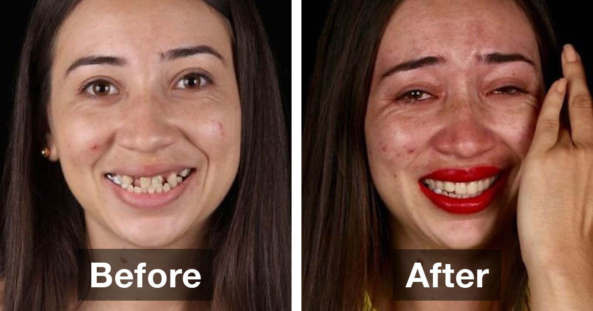 Brazilian Dentist Treats Poor People's Teeth For Free And Here Are 30 Incredible Transformations