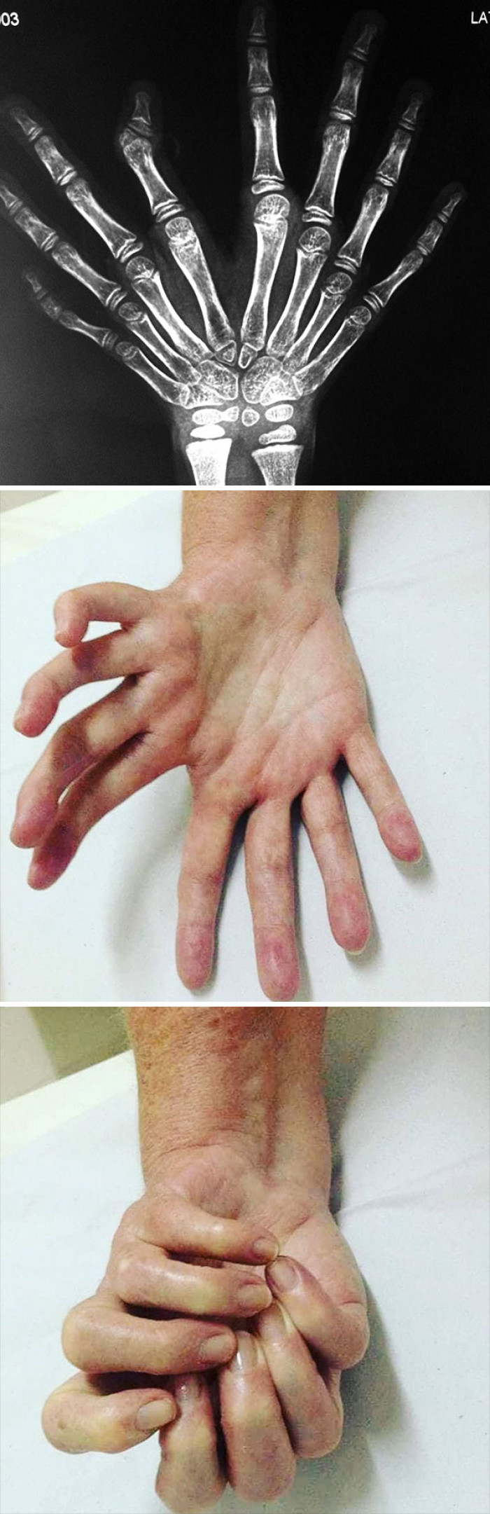 Mirror Hand Syndrome