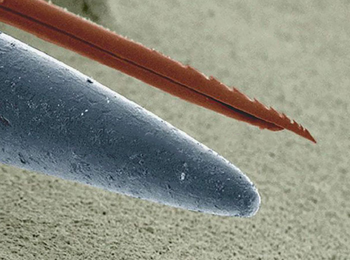 Microscopic Look At Bee Stinger vs. Needle