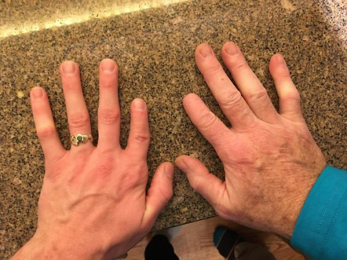 """My Dad's Index Tip Was Cut Off When He Was 10, My Index Is Shorter Than My Pinky"""